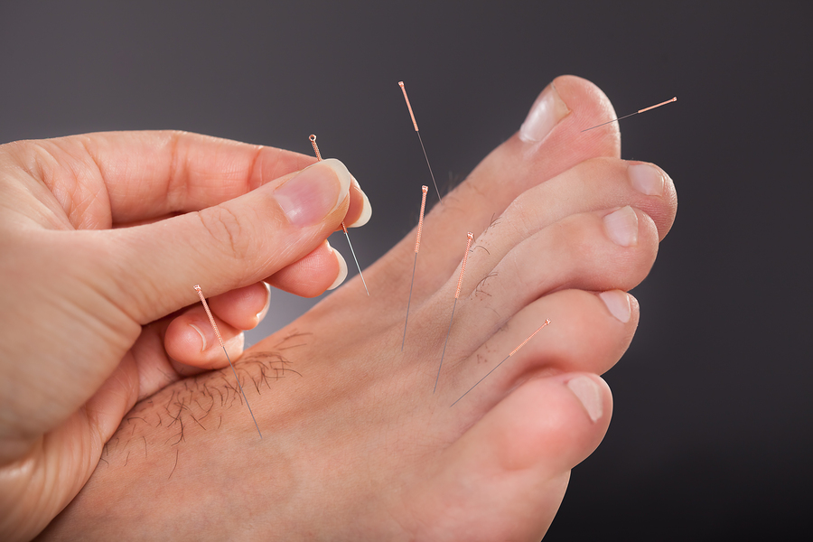 Acupuncture & Dry Needling For The Foot & Ankle