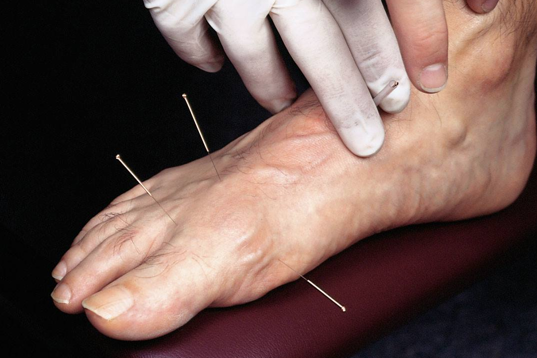Acupuncture & Dry Needling For Chiropodists