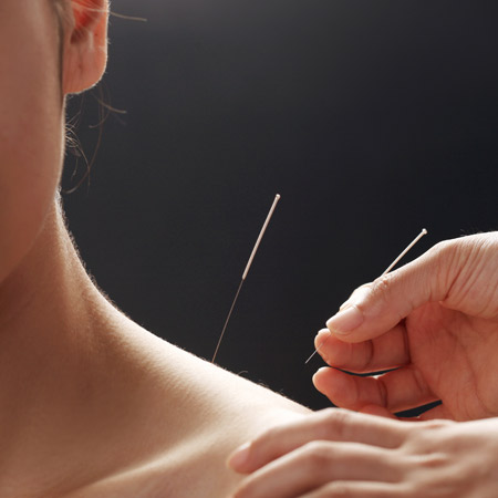 Acupuncture For The Upper Extremity