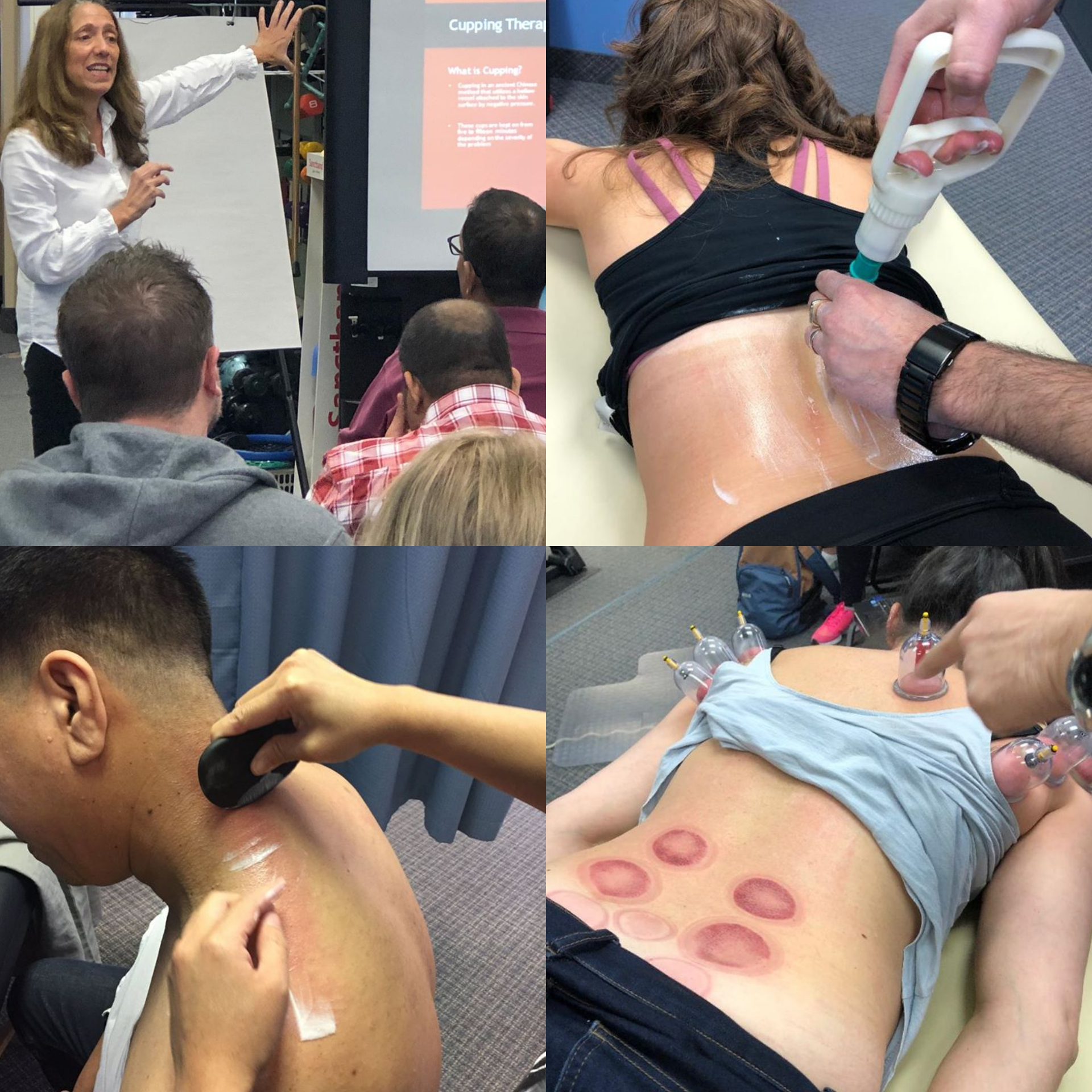 Therapeutic Cupping And Gua Sha Course
