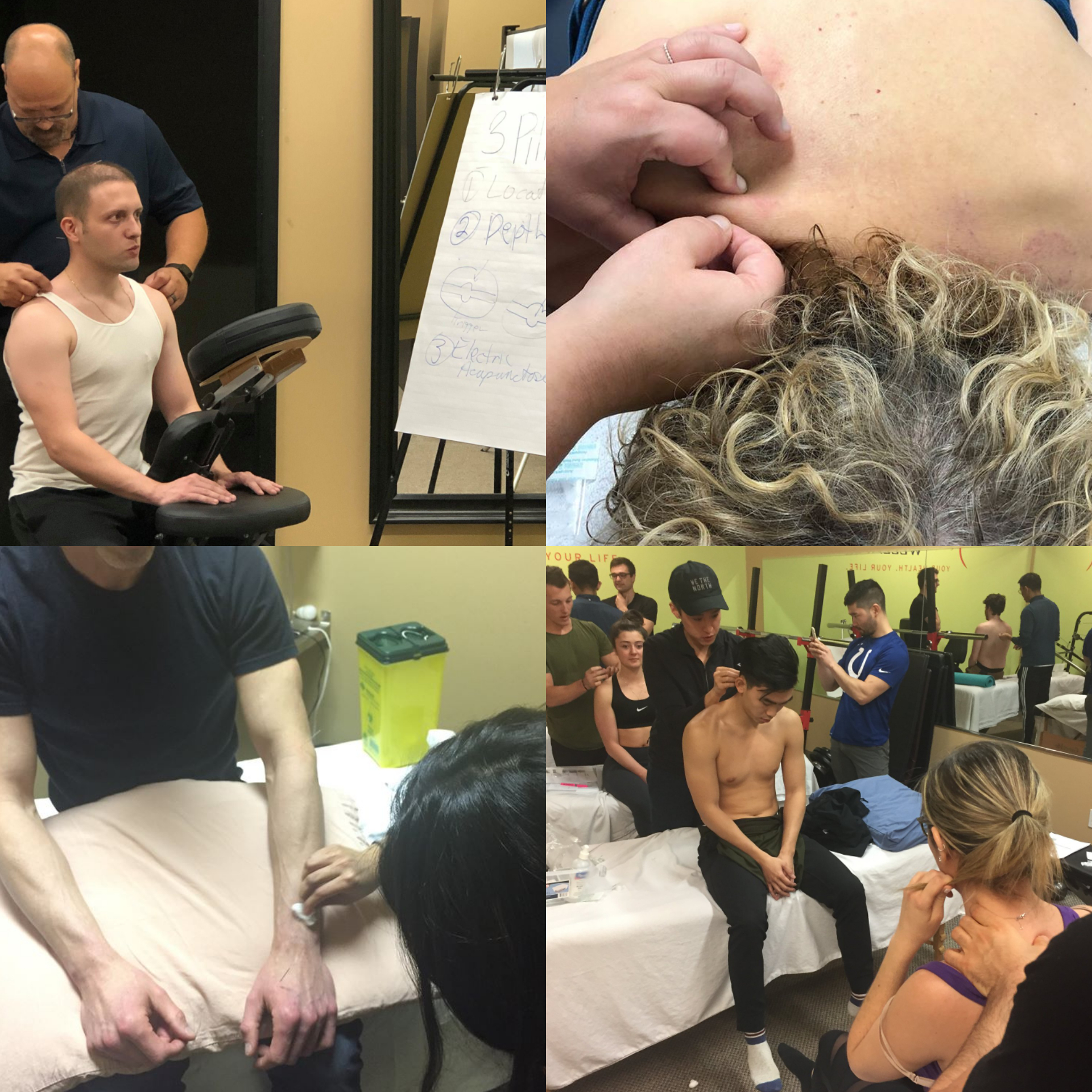 Program: Single Point Dry Needling (2 Days)